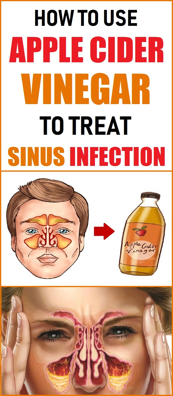 treat sinus infection
